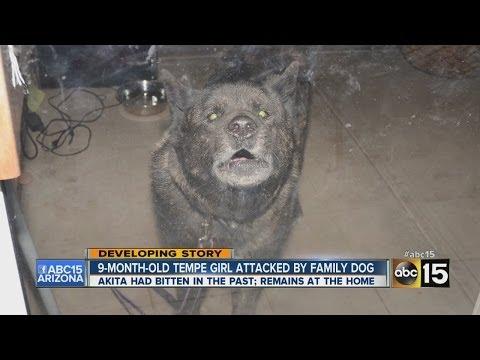 VIDEO: Another Arizona Infant Mauled By Dog