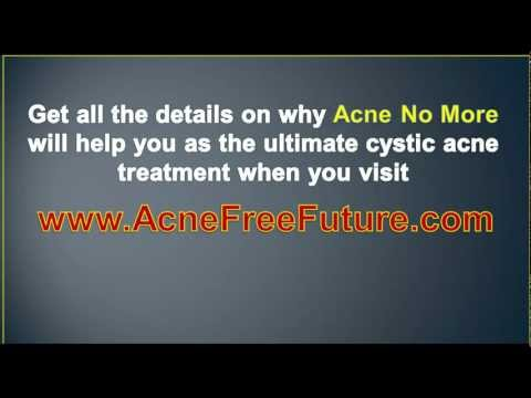 Cystic Acne Treatment – Cure Cystic Acne