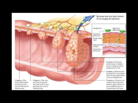 Рак прямой кишки первые симптомы