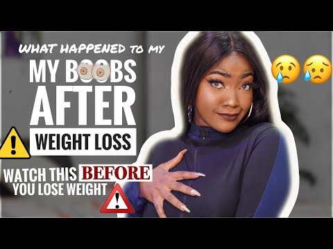 THIS HAPPENED TO MY BREASTS/BOOBS AFTER I LOST WEIGHT | WEIGHT LOSS Q&A | DEALING WITH STRETCH MARKS