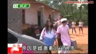 海南省可憐16歲「窮顏巨乳」女孩!胸部垂到肚臍家貧沒錢做縮胸手術!