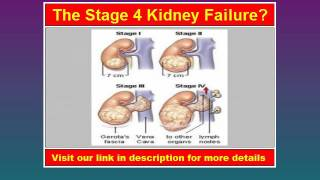 Visit: http://bracacacohen.odgi.net/Kidney Stage 4 Kidney Failure Kidney failure (also called renal failure) is a term used to describe when a person's kidneys ...