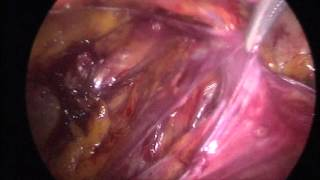 Ferhat Ferhatoglu M.D. Tepp repair of right inguinal hernia