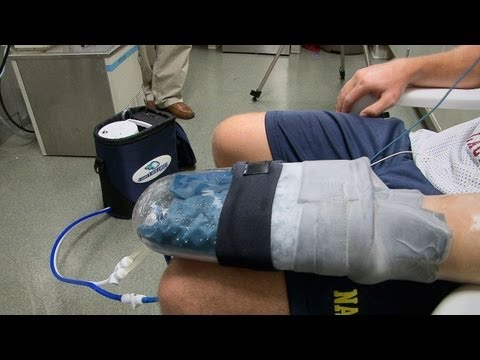Cooling Glove Boosts Exercise Recovery