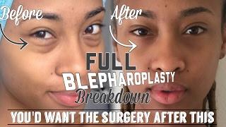 Video My Full Blepharoplasty Breakdown | Day by Day + FAQ + Results MP3, 3GP, MP4, WEBM, AVI, FLV Juli 2018