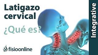 El esguince cervical o latigazo cervical tiene unas características y conjunto de síntomas muy particulares y difíciles en ocasiones...