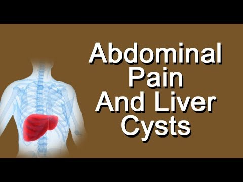 Abdominal Pain And Liver Cysts