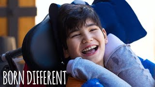Video The Boy Who Can't Stop Hurting Himself | BORN DIFFERENT MP3, 3GP, MP4, WEBM, AVI, FLV Januari 2019