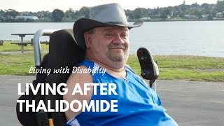 Living After Thalidomide