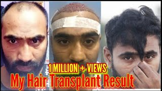 Video Best Hair Transplant in india || My 8 month and 23 days result MP3, 3GP, MP4, WEBM, AVI, FLV November 2018