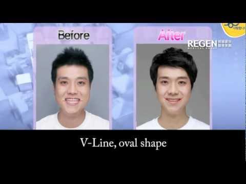 韓國男星整容前後對比