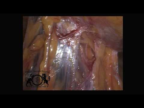 Laparoscopic lysis of adhesions for abdominal pain