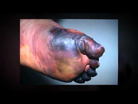 Смотреть онлайн видео Cura para la Gangrena diabética