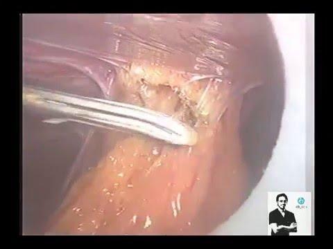 laparoscopy for severe pelvic Adhesions (adhesiolysis)endometriosis  dr wael elbanna