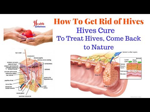 How To Get Rid of Hives - Hives Cure - To Treat Hives, Come Back to Nature
