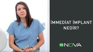 My Nova TV - İmmediat implant nedir ? (Tek Bölüm)