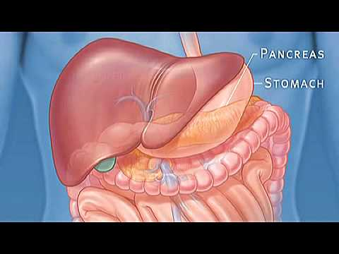 tumore del pancreas in aumento: sintomi, prevenzione e cause