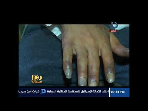 العرب اليوم - شاهد: حقنة مخدرات تهدد شابًا بفقدان أحد ذراعيه
