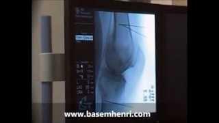 علاج الام مفاصل الركبة بالنردد الحرارىRF -د-باسم هنرى