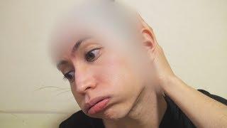 Video 髪の毛が無くなりました... How I Lost All Of My Hair... MP3, 3GP, MP4, WEBM, AVI, FLV Januari 2018