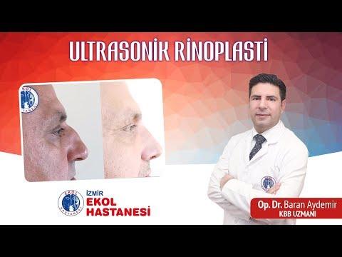 Ultrasonik Rinoplasti - Opr. Dr. Baran Aydemir - İzmir Ekol Hastanesi
