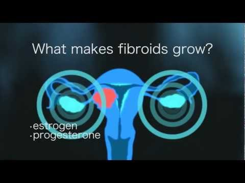 An Informative Video on Fibroid Tumors