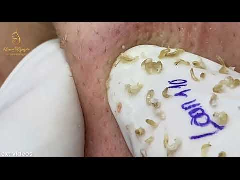 After hours of work, now it's time for acne video 110   Loan Nguyen