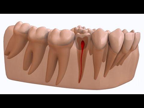 Traitement de canal - Centres dentaires Lapointe