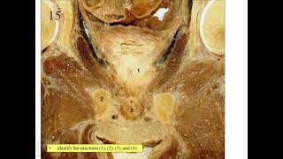 OSPE In Anatomy Of Endocrine And Reproductive Systems