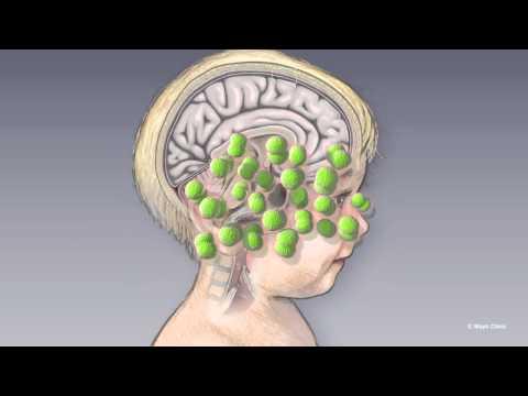 Managing Meningitis - Mayo Clinic