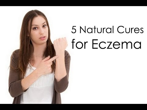 How to Cure Eczema Fast : 5 Natural Cures for Eczema (видео)
