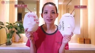 Hiệu quả của liệu trình Cân đối gương mặt – Khách hàng Đào Tuyết Trang