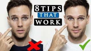 Video BEST ways to get rid of DARK CIRCLES under your eyes | THE TRUTH MP3, 3GP, MP4, WEBM, AVI, FLV Mei 2019