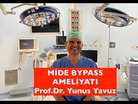 Mide Bypassı (Gastrik Bypass) www.yunusyavuz.com