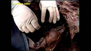 Pulmonary Ligament