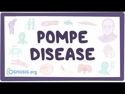 Pompe disease - causes, symptoms, diagnosis, treatment, pathology