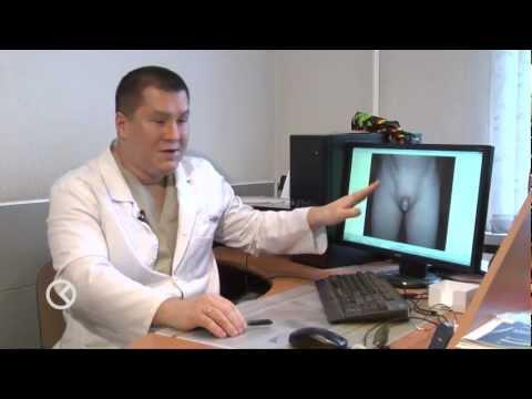 Гигиена новорожденного - Обрезание крайней плоти у мужчин