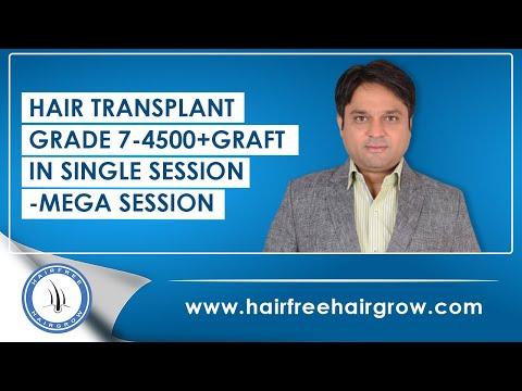 HAIR TRANSPLANT -GRADE 7-4500+ graft in SINGLE SESSION-MEGA SESSION @ LOW COST & BEST WORK_A plasztikai sebészet kulisszatitkai. Heti legjobbak