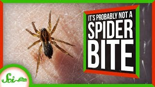 That's Probably Not a Spider Bite by  SciShow