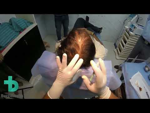 Introduction to Artificial Hair Transplant
