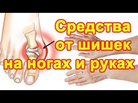 Большие шишки на пальцах ног, стоп или выбитый палец на руке? Средство Полимедэл - лечение отека. (видео)
