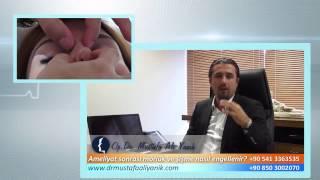 Op. Dr. Mustafa Ali Yanık burun estetiği sonrası morluk ve şişlik asıl engellenir