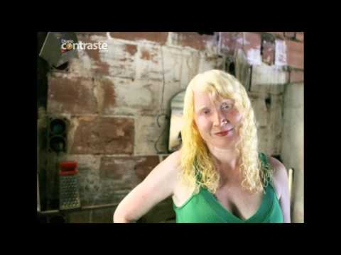 Bajo la sombra del albinismo