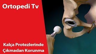 Kalça Protezlerinde Çıkmadan Korunma - Ortopedik Bilgi