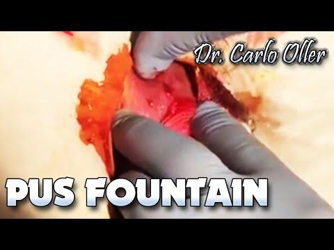 theedexitvideo: Fountain of Pus