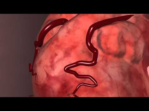 Cardiology: Do You Know The Warning Signs of Heart Disease?