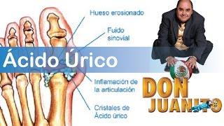 cibi da evitare in caso di acido urico alto que no hay que comer con acido urico tratamiento para la psoriasis de gota