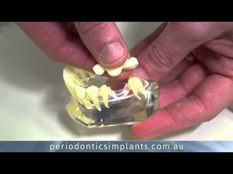 TOOTH!! - http://www.periodonticsimplants.com.au -- What are my options for replacing one missing tooth? - Periodontics & Implants Perth, WA There are basically 4 opti...