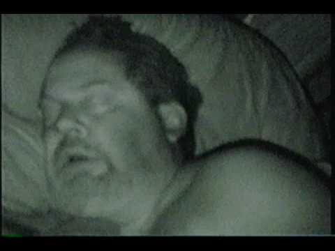 La obesidad aumenta los casos de asfixia del sueño