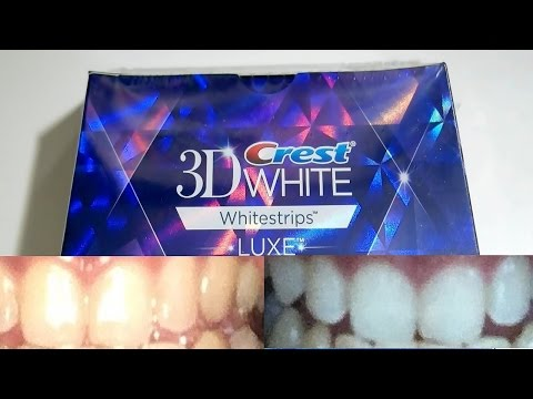 Guy with yellow teeth tests out whitening strips for 20 days (Crest 3D Whitestrips)